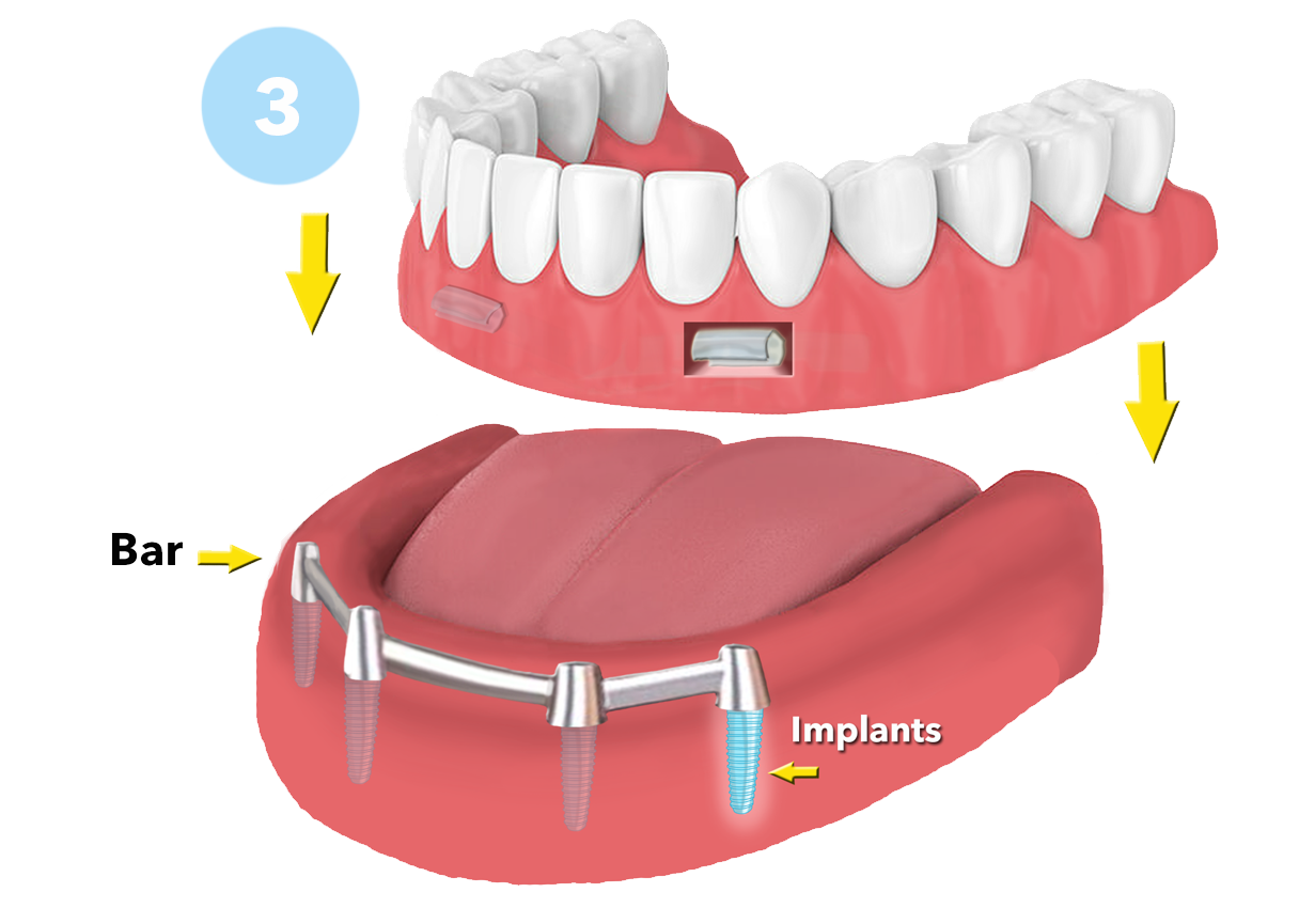 Single Tooth Implant Dentures