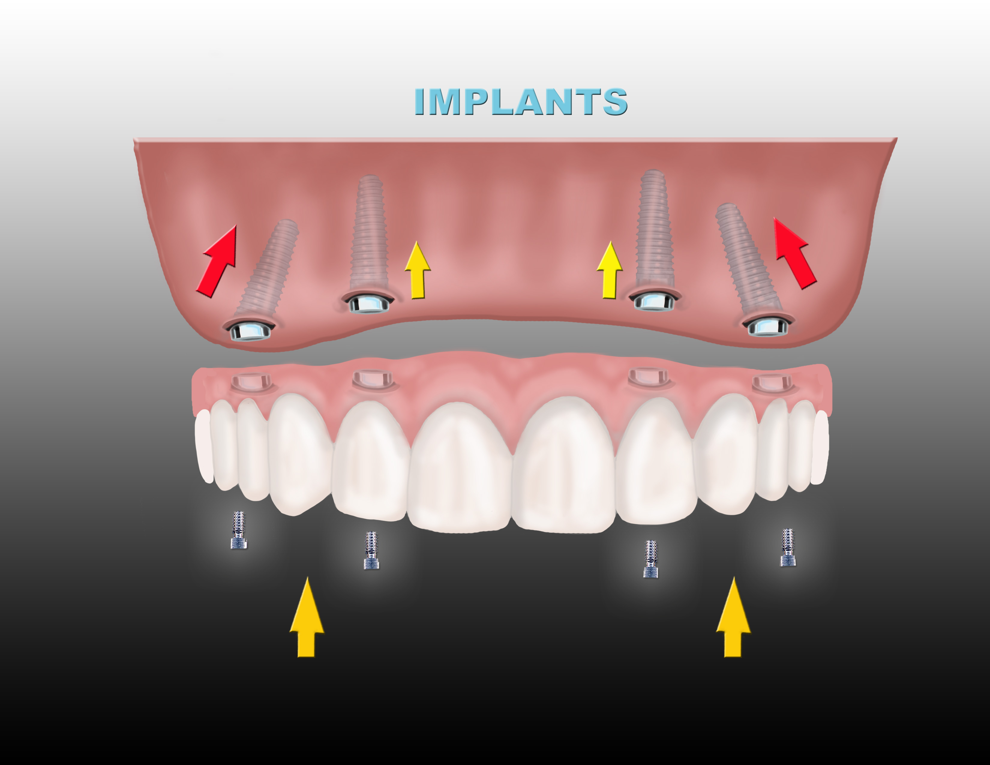 dental implants Ridgewood