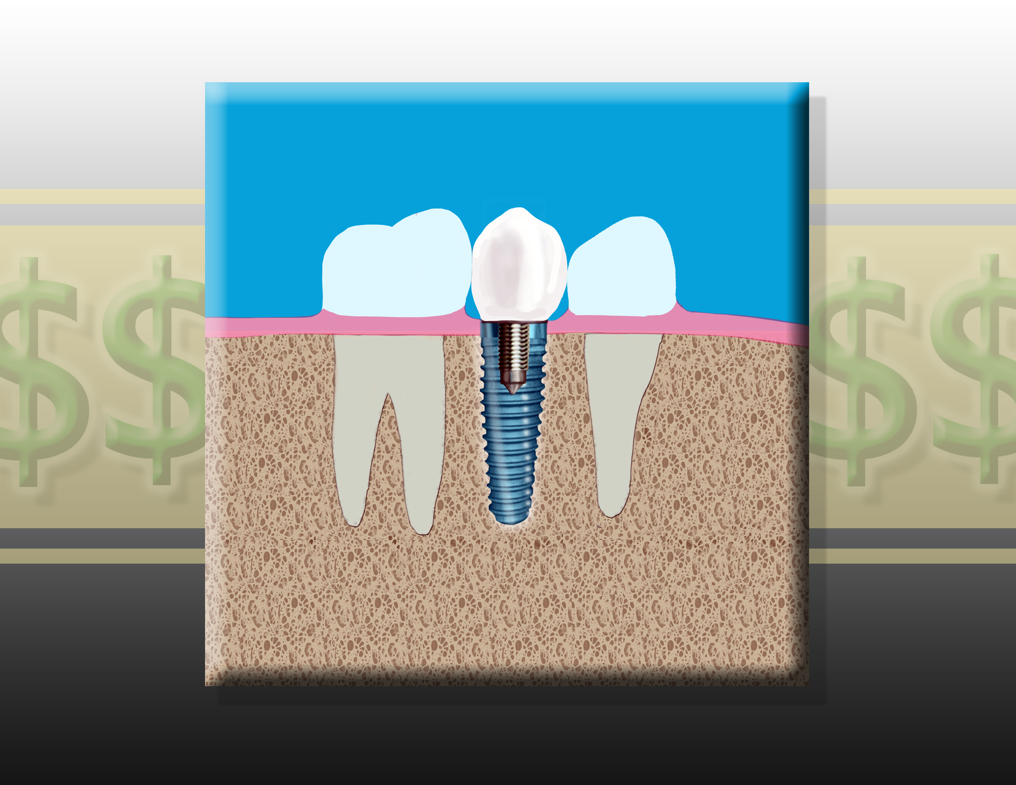 Discount Dental Implants